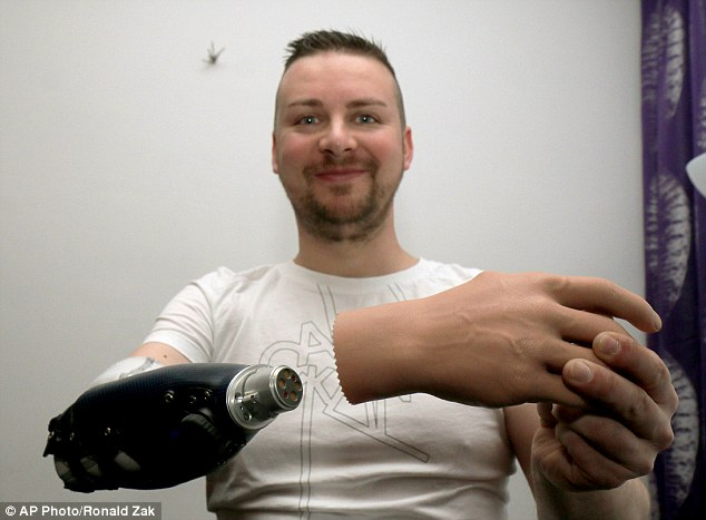 Look ma, no hand: One of the men who has benefitted from Prof Aszmann's treatment, Milorad Marinkovic, shows his bionic arm as he poses for a photograph at his home in Vienna, Austria