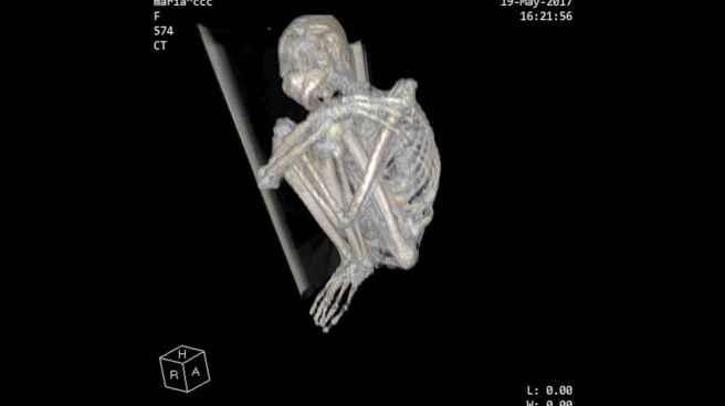4_x_ray_of_mummy_cca67bdddfc43e542f71ffd94e6d5ca4_1600x0